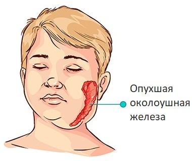 Опухшая околоушная железа