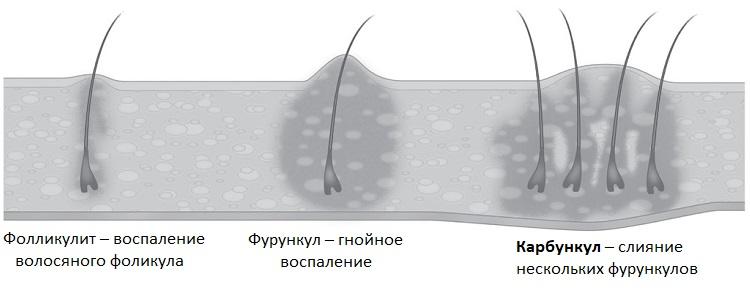Процесс формирования карбункула