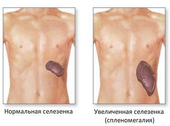 Сравнение нормальной и увеличенной селезенки