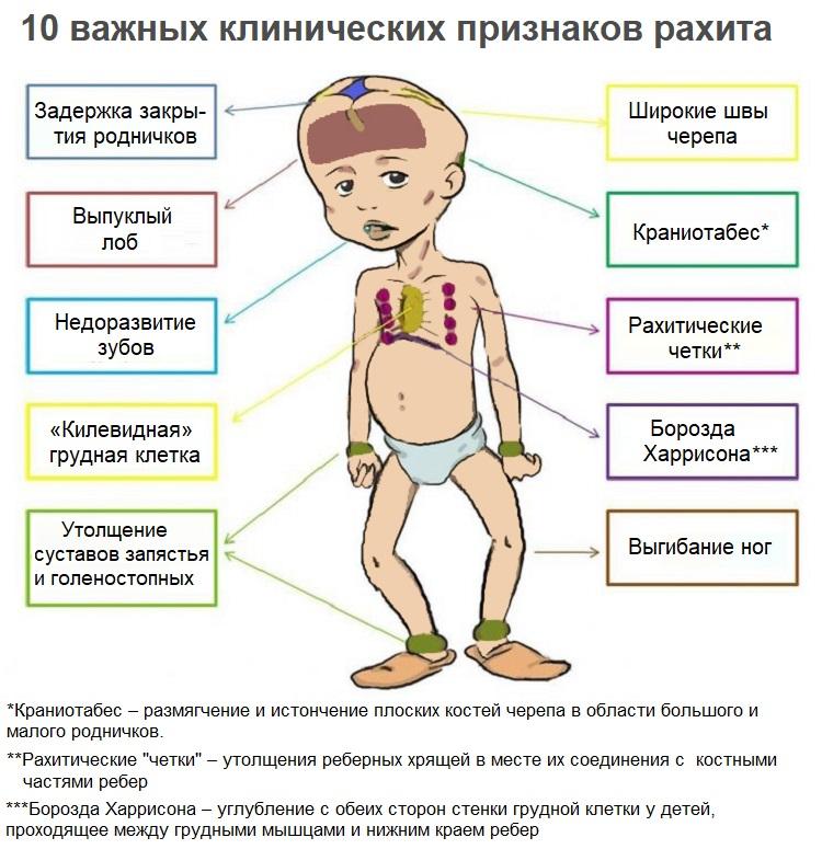 Признаки рахита у ребенка 1 года жизни