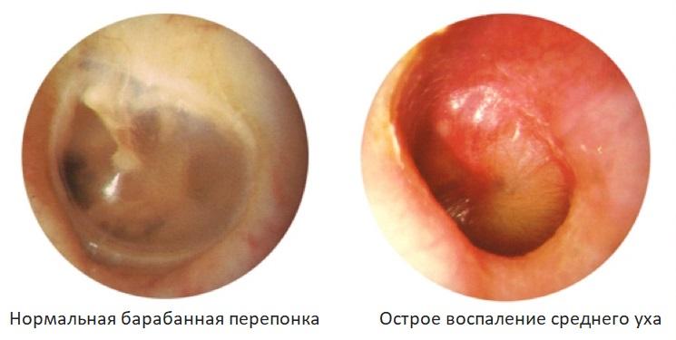 Острое воспаление среднего уха