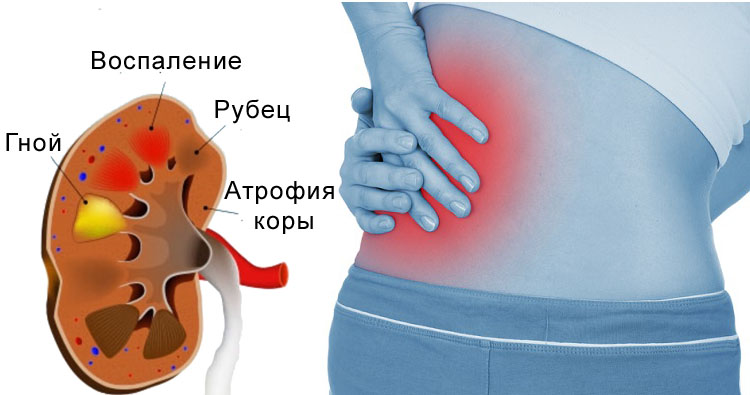 Последствия пиелонефрита у женщины
