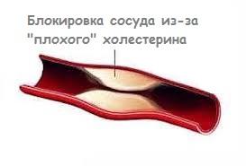 Атеросклероз артерий в икрах