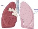 Рак легких: факторы риска и как его вовремя выявить