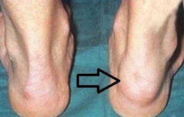 Псориатический артрит на ноге
