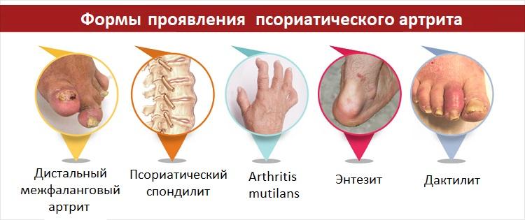 Формы проявления псориатического артрита